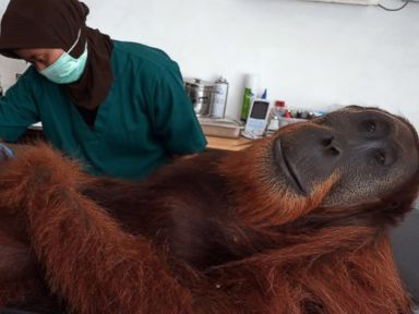 PHOTO: A veterinary staff member of the Sumatran Orangutan Conservation Programme center conducts medical examinations on a 14-year-old male orangutan