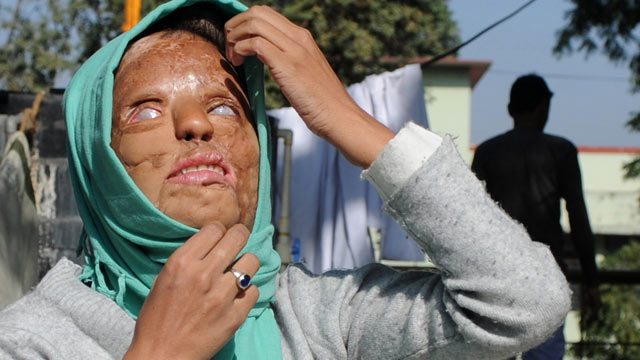 PHOTO: Acid attack survivor Sonali Mukherjee adjusts her headscarf in New Delhi, Dec. 6, 2012.
