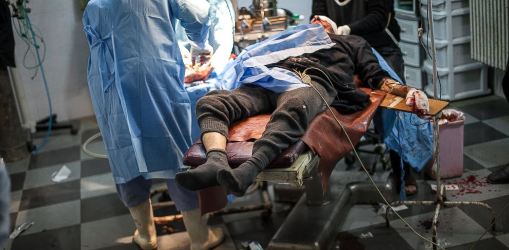 PHOTO: A man from the village of Khan Shejun, injured when a tank shell allegedly fell on his home during fighting between pro-regime troops and rebels forces, is treated at the al-Akra hospital in Kfar Nubul, in Idlib province, on February 15, 2013.