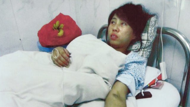 PHOTO: Feng Jianmei is shown after having her 7-month-old fetus aborted because she was in violation of China?s one baby policy.
