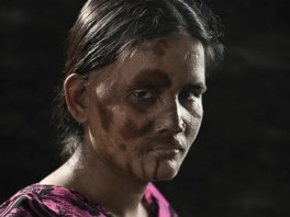 Portraits of Acid Attack Survivors