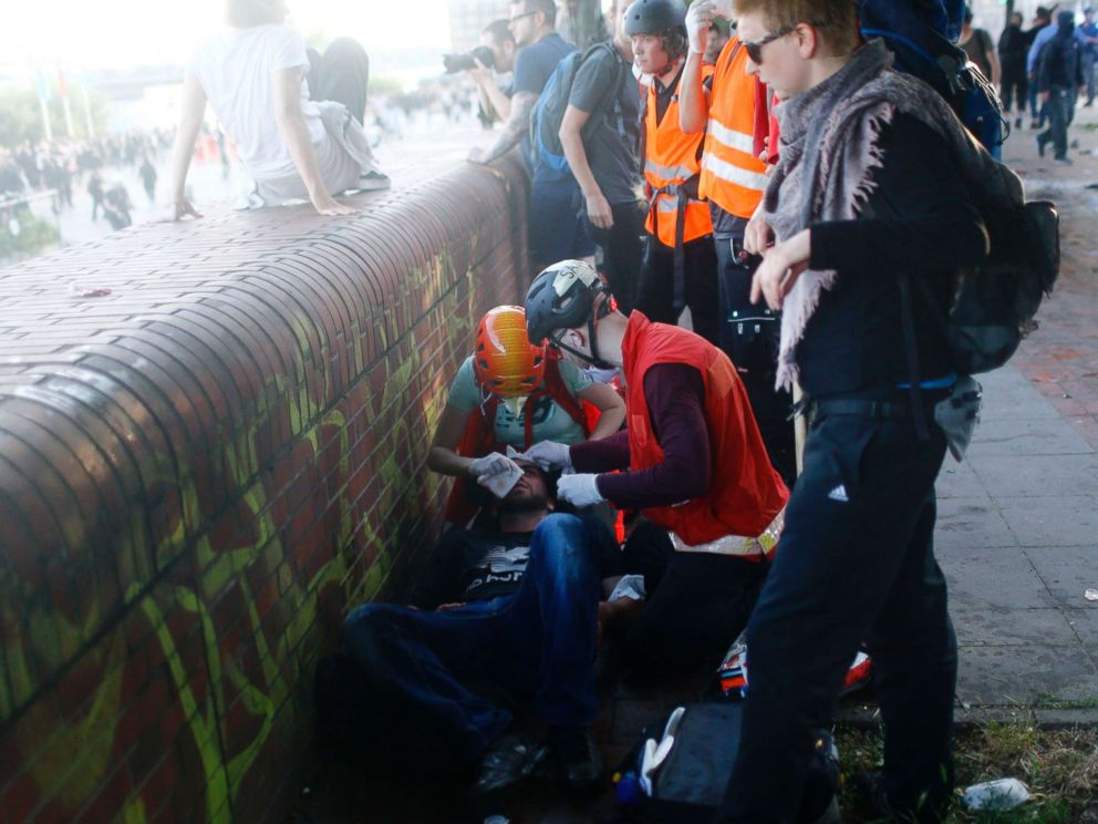 PHOTO: An injured protester gets help during the demonstration during the G-20 summit in Hamburg, Germany, July 6, 2017.