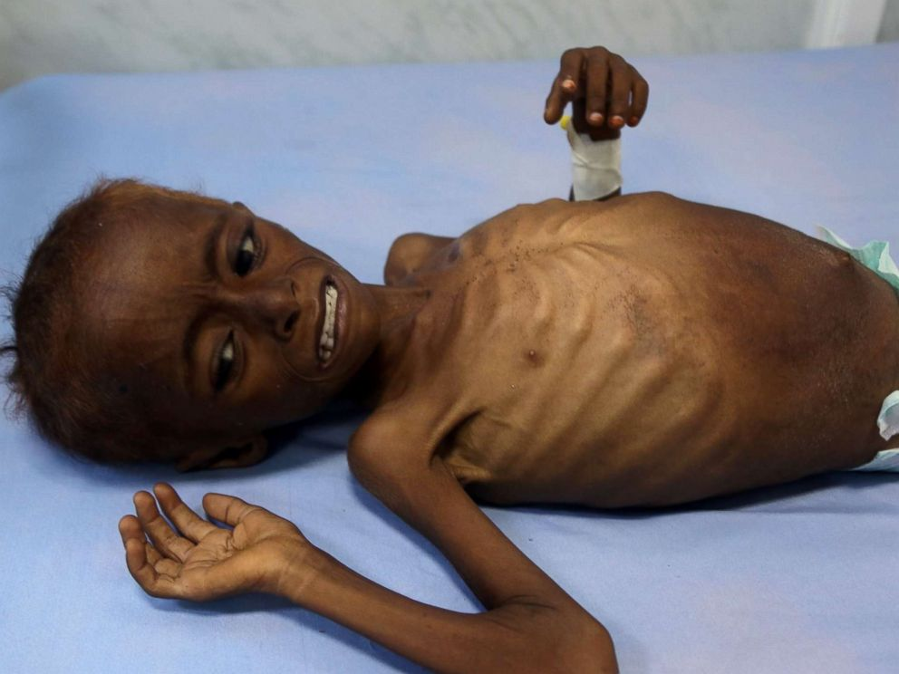 PHOTO: A malnourished Yemeni child receives treatment at a hospital in the Yemeni port city of Hodeidah on Dec. 3, 2017.