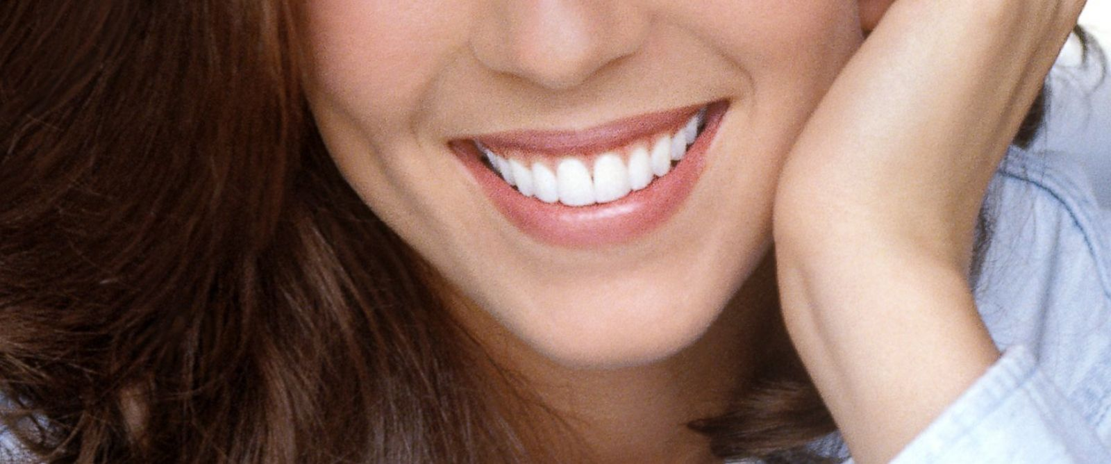"""PHOTO: The obsession for megawatt smiles and using over-the-counter whiteners is leading to what many dentists are calling """"bleachorexia."""""""