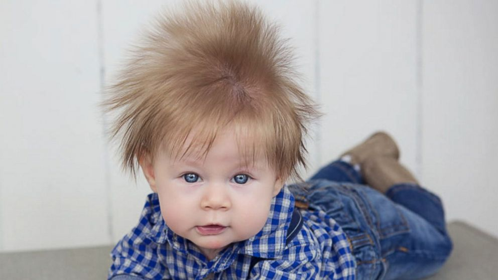 Five-month-old Oliver Dunn was born with a full head of dark hair.