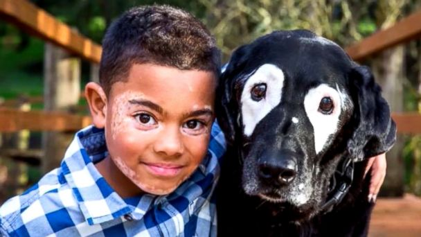 Carter Blanchard, 8, and Rowdy, a 13-year-old dog, both have a rare skin disorder called vitiligo.