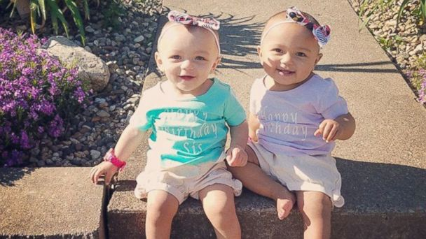 PHOTO: Twin girls Kalani and Jarani, 1, gained attention from around the globe in January, for having different skin tones.