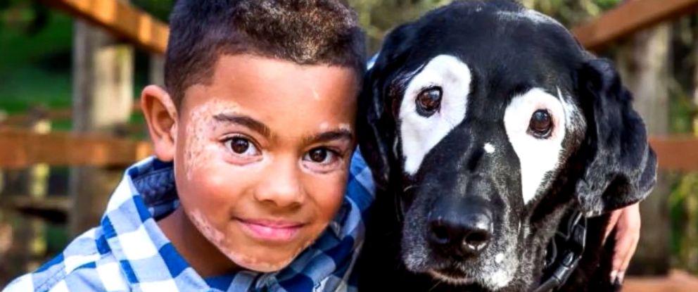 PHOTO: Carter Blanchard, 8, and Rowdy, a 13-year-old dog, both have a rare skin disorder called vitiligo