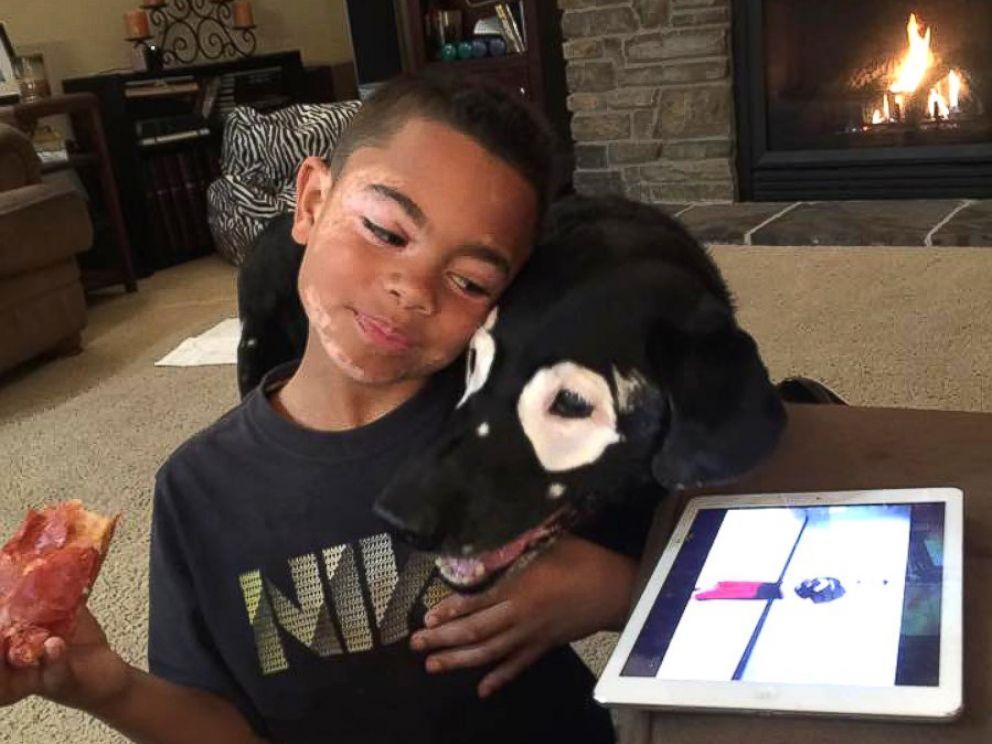PHOTO: Carter Blanchard, 8, and Rowdy, a 13-year-old dog, both have a rare skin disorder called vitiligo.