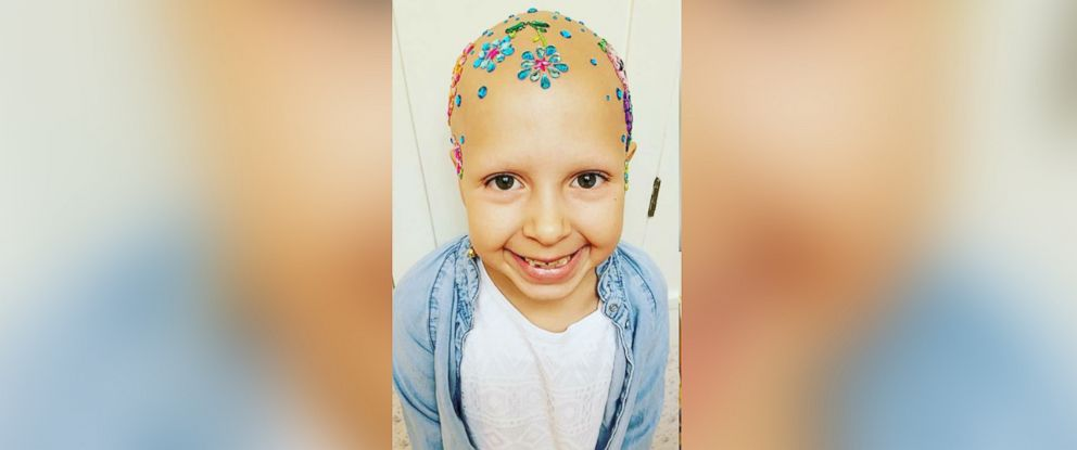 "PHOTO: Gianessa Wride, 7, who was diagnosed with alopecia back in January, still participated in her elementary schools ""Crazy Hair Day."""