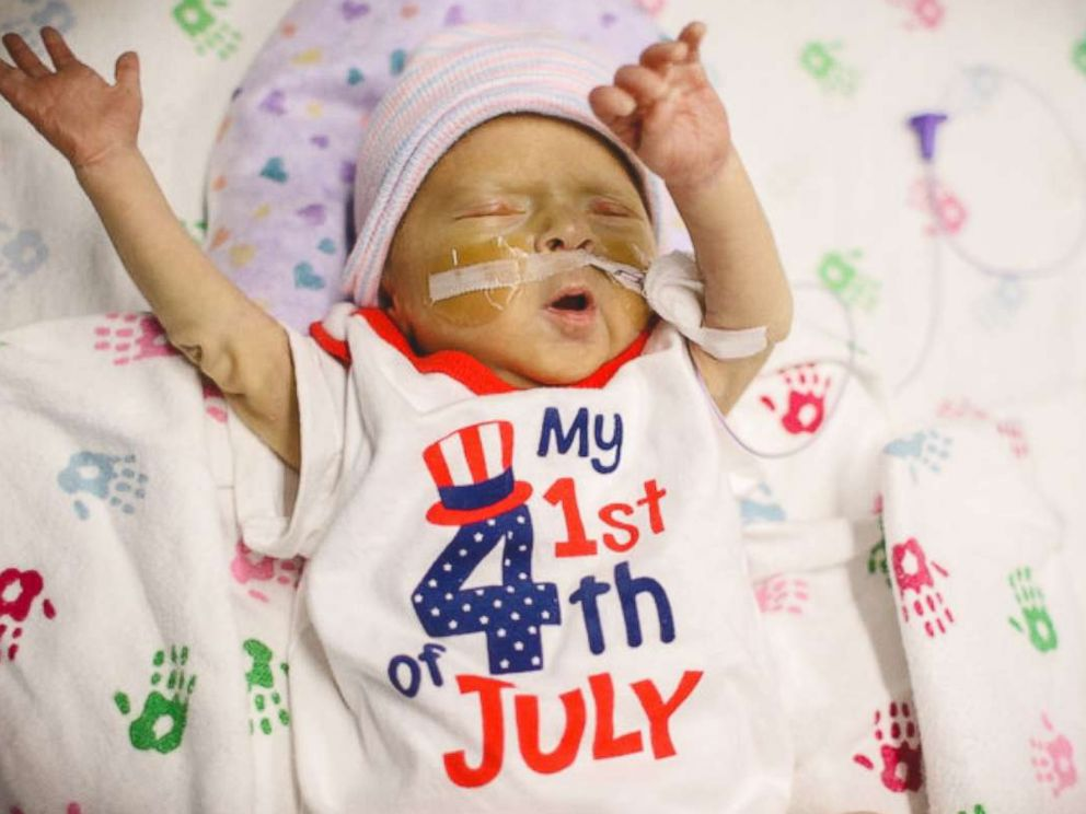 PHOTO: The neonatal intensive care unit at Advocate Childrens Hospital in Chicago threw a Fourth of July celebration for its tiniest patients.