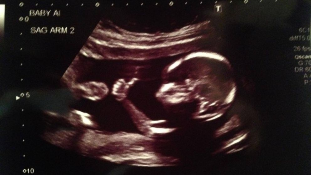 PHOTO: Baby flashes thumbs up in coolest ultrasound ever.