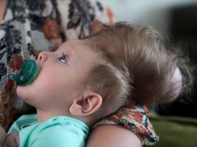 Baby Thriving Despite Condition Thought Incompatible With Life