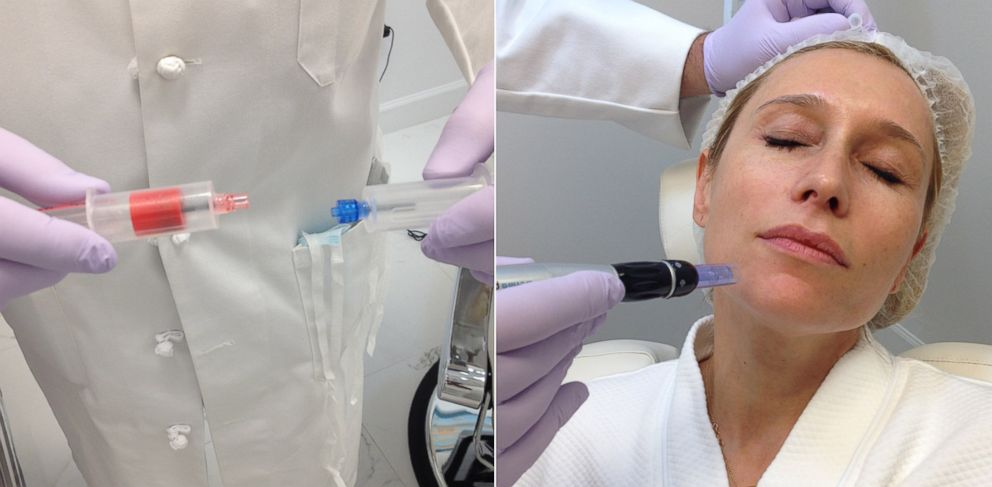 "PHOTO: A ""Blood Facial"" at Esthetica MD combines the patients centrifuged plasma with calcium chloride"