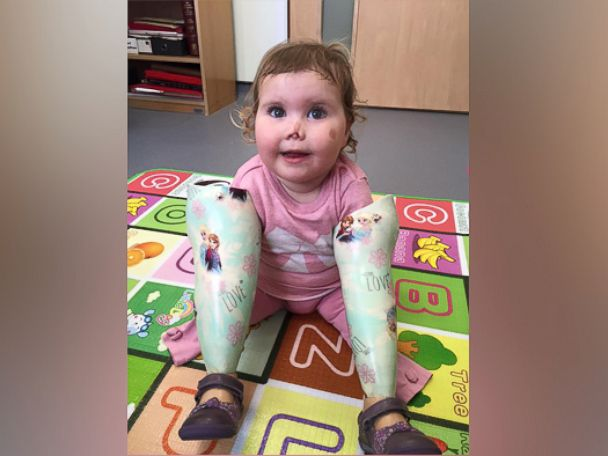 'She's just like me:' Girl gets doll that is a quadruple amputee
