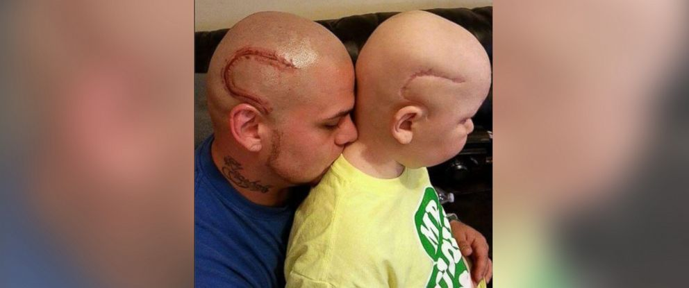 PHOTO: Josh Marshalls tattoo to match his sons scar was done by Merl Kent of Point Blank Tattoo.
