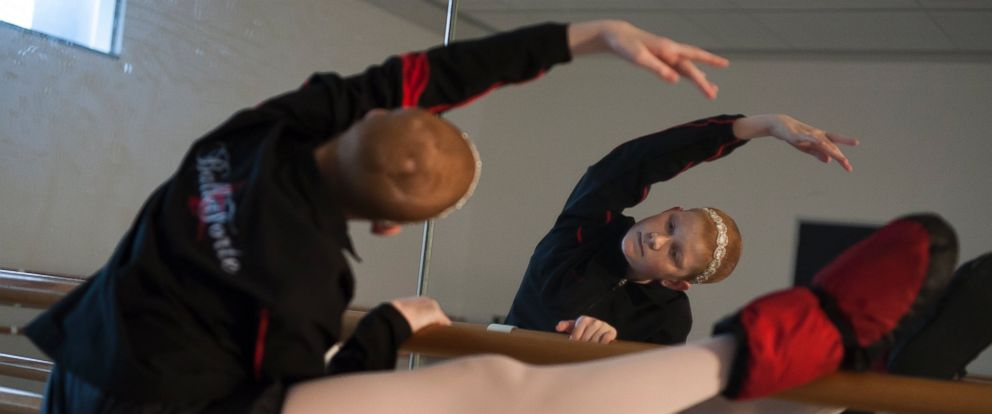 PHOTO: Peyton Richardson warms up before a ballet rehearsal.