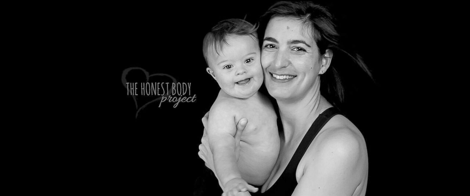 """PHOTO: The """"Defined by Our Hearts"""" photo series by The Honest Body Project celebrates the unbreakable bond between moms and their children with special needs."""