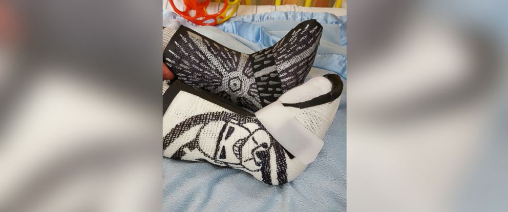 """PHOTO: Amanda Hall, a physical therapist from Washington D.C., created a cast inspired by """"Star Wars."""""""