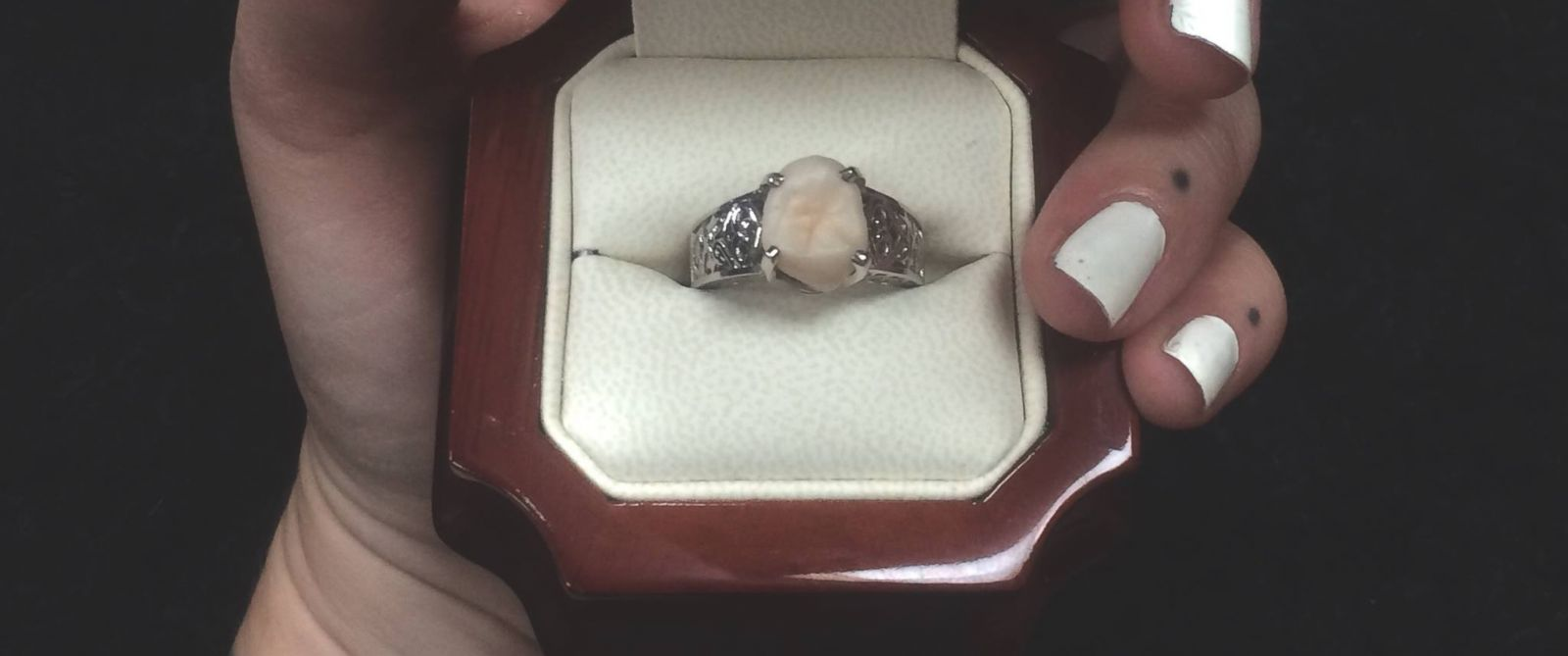 Canada man proposes to girlfriend with engagement ring for Jewelry made from kidney stones