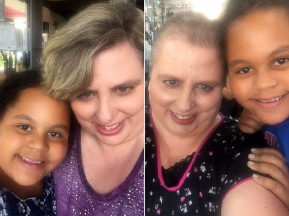 PHOTO: Olivia Ohlson, 10, poses with her mom, Gini Ohlson, before, left, and after Gini Ohlson lost her hair due to chemotherapy.
