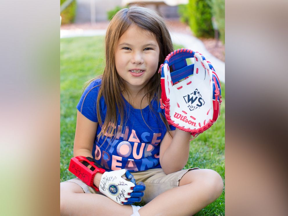 Girl with 3D prosthetic hand throws first pitch at World Series