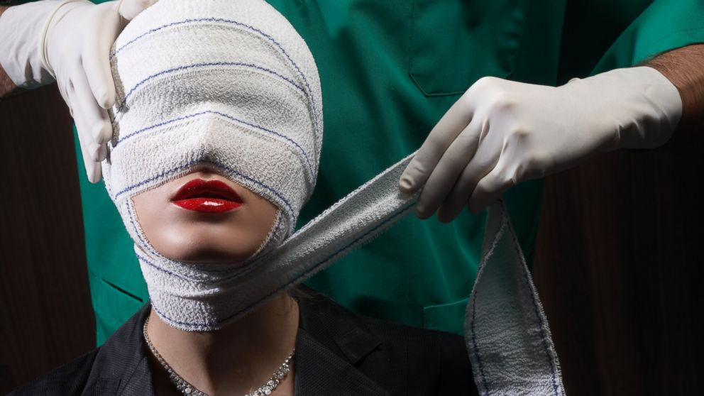 A woman is seen after a plastic surgery procedure in this undated stock photo.