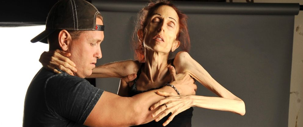 PHOTO: Rachael Farrokh has been battling anorexia for 10 years.