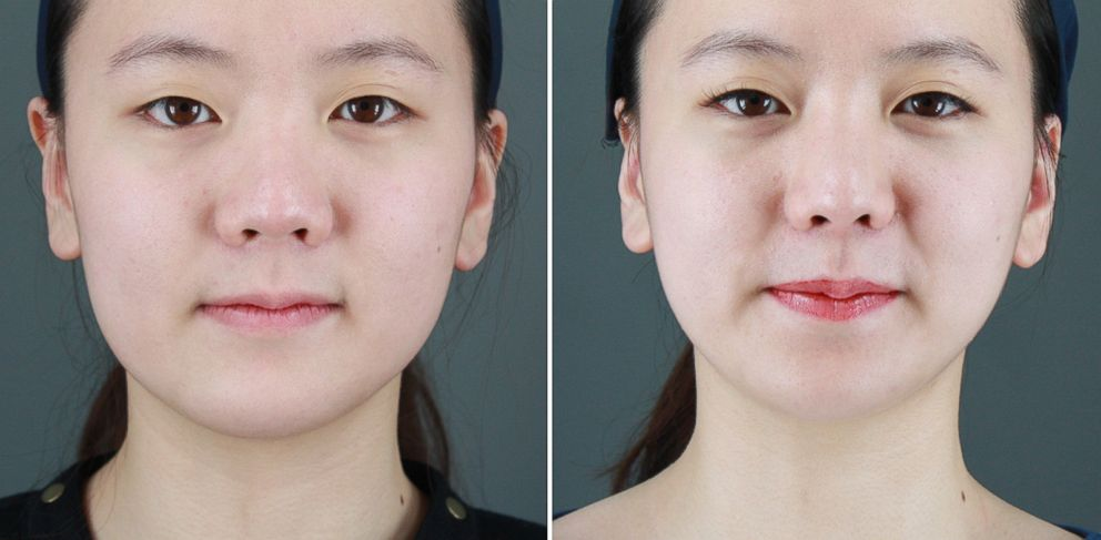 PHOTO: Christina Lim, 19, before and after her facial plastic surgery procedures.