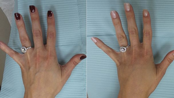 ht hand plastic surgery split mt 140814 16x9 608 Hand Rejuvenation for Better Engagement Ring Selfies: Before and After Shots