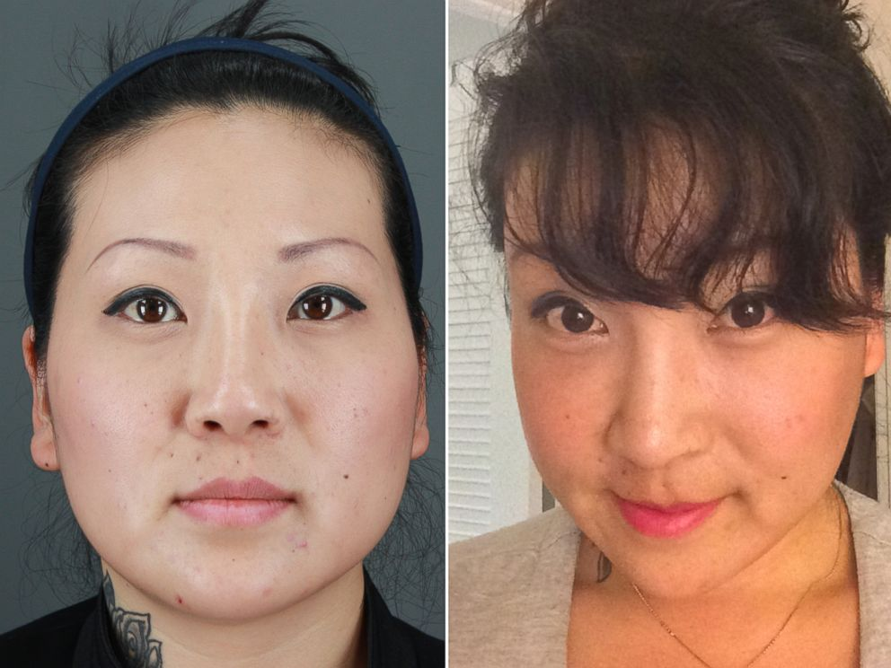 PHOTO: Jessica Choi, 33, before and after her facial plastic surgery procedures.