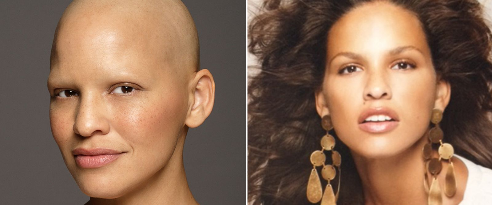 PHOTO: Model Mieko Rye boldly posed after chemotherapy treatments to treat stage three breast cancer in order to fully accept her new look.