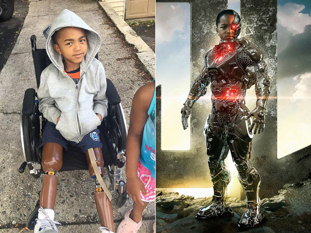 PHOTO: Kayden Kinckle has been a double amputee since he was 1 year old. | Kayden Kinckle as Cyborg.