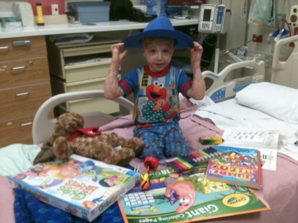 PHOTO: Owen Mahan, 10, suffered burns over 98 percent of his body at the age of 2.