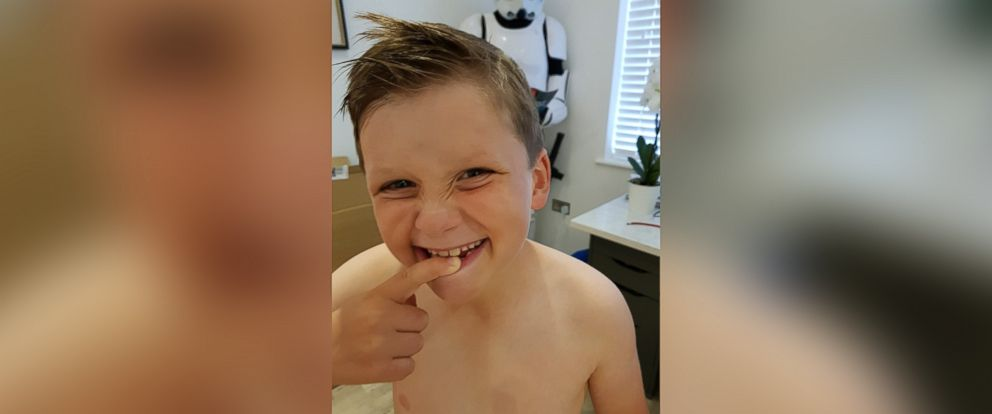 PHOTO: Sam Warren, 8, shows off his missing tooth.
