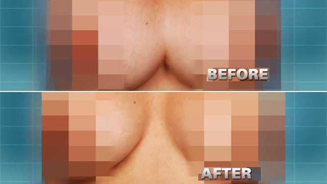 PHOTO: Pictured here is Dinora Rodriguez, 40, whose repair of her breast implants left her with conjoined breasts due to a mistake in the procedure.