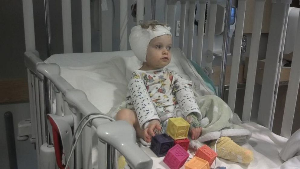 Deaf Toddler gets Brain Stem Implant