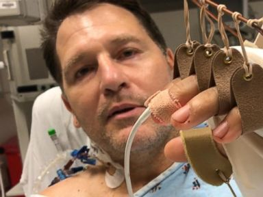 Hollywood executive's almost fatal illness led to a hand transplant
