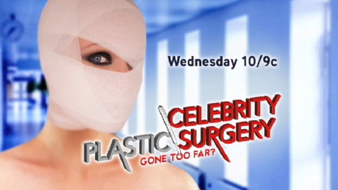 VIDEO: Heidi Montag and others share their plastic surgery stories. Wed, 10/9c on ABC.