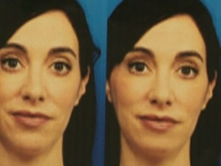 Watch: Woman Gets Chin Implant to Look Better Online