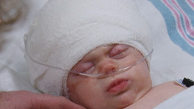 3-Month-Old Needs Skull Surgery