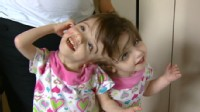Conjoined Twins: A Medical Wonder