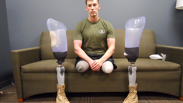 "PHOTO: U.S. Marine Sgt. Jonny Joseph ""Joey"" Jones lost his legs in a bomb blast in Afghanistan."