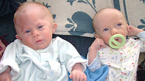 Photo: Baby Gets New Life After Reconstructive Surgery: Newborns Misshapen Forehead Could Have Hurt His Development