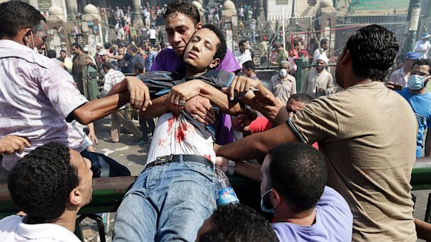 AP egypt violence rage day wounded man thg 130816 16x9 608 Coming Up on This Week: The Latest on the Crisis in Egypt