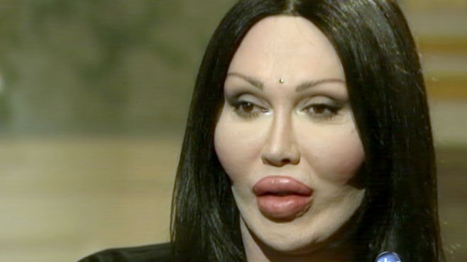 Pete Burns Pete Burns' Dramatic T...