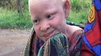 PHOTO Life for Tanzanians with Albinism: Gruesome Attacks, Extreme Sun Exposure, Dire Poverty