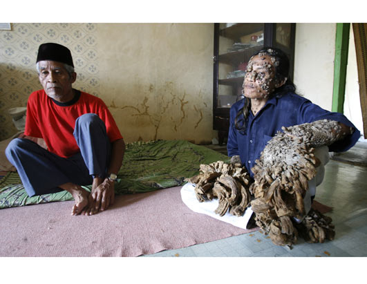 'Tree Man' Heals in Indonesia