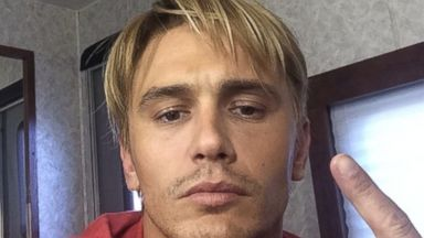"PHOTO: James Franco posted this photo to his Instagram on Aug. 11, 2014 with the caption, ""That Late 90s bleached look."""