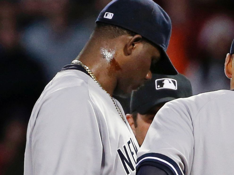 PHOTO: A substance can be seen on Yankees pitcher Michael Pinedas neck, April 23, 2014.